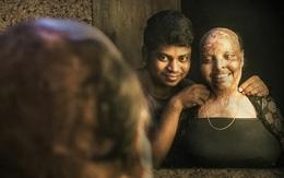 Cô gái bị tạt axit biến dạng khuôn mặt, mù mắt vì từ chối lời cầu hôn, 11 năm sau phép màu xảy ra