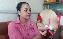 Tuyên Quang: Nữ khách hàng tố bơm chất nâng ngực ở spa bị chảy mủ