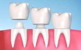 Bọc răng sứ có cần lấy tủy không? Quy trình bọc răng sứ sau khi lấy tủy
