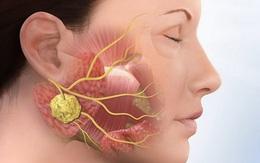 Điều trị bệnh quai bị: 3 nguyên tắc chung và phương pháp cho 5 thể bệnh