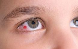 Những thông tin về mắt bị đỏ tròng trắng người bệnh nên biết