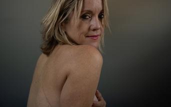 """12 phụ nữ """"Tự hào về những vết sẹo trên ngực"""""""